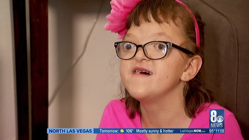 Local family shares daughter-s story of Apert Syndrome_68922828