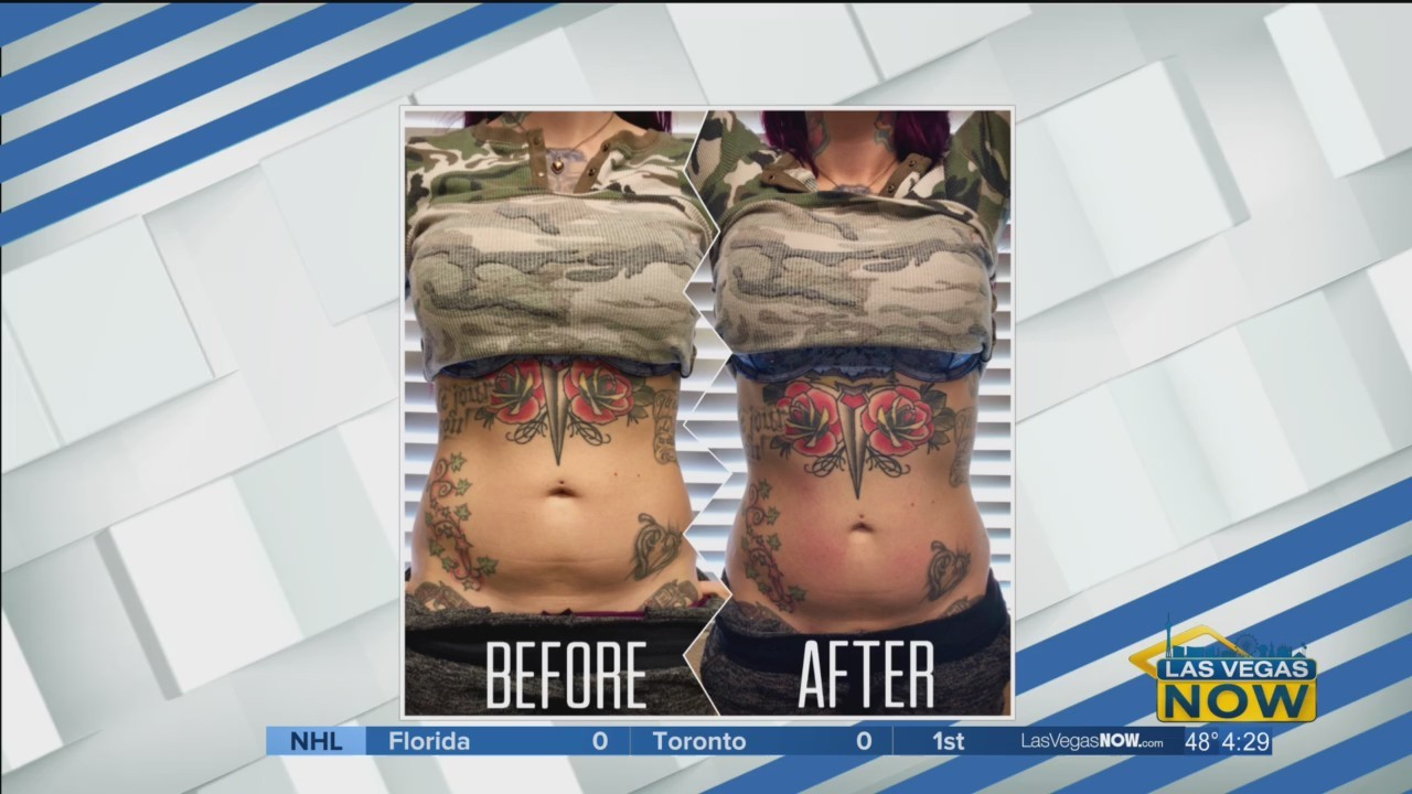 Shrink stubborn fat with body contouring