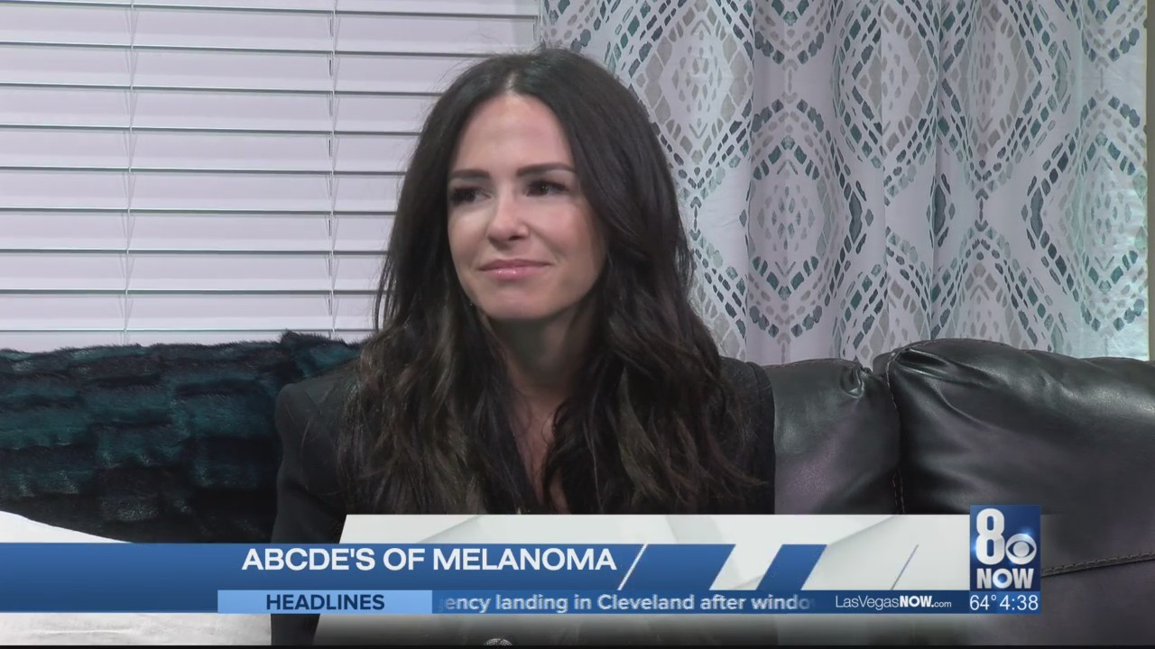 The ABCDE's of melanoma