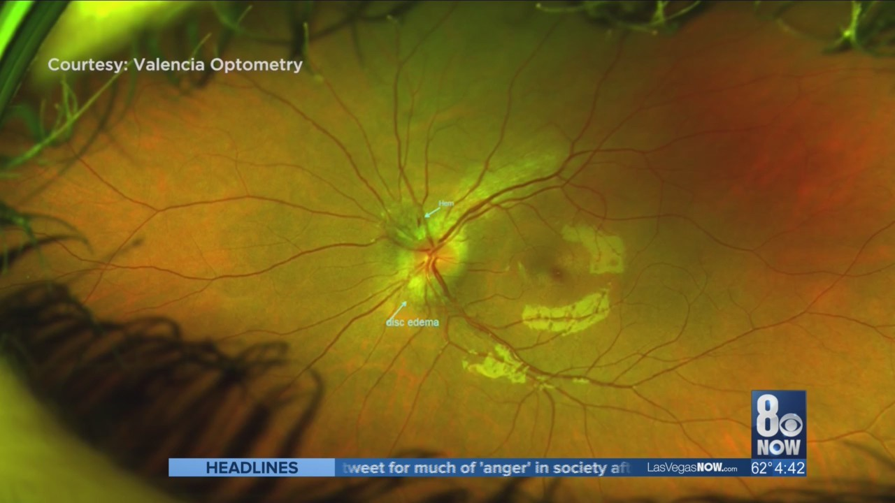 Eye test helps reveal health issues