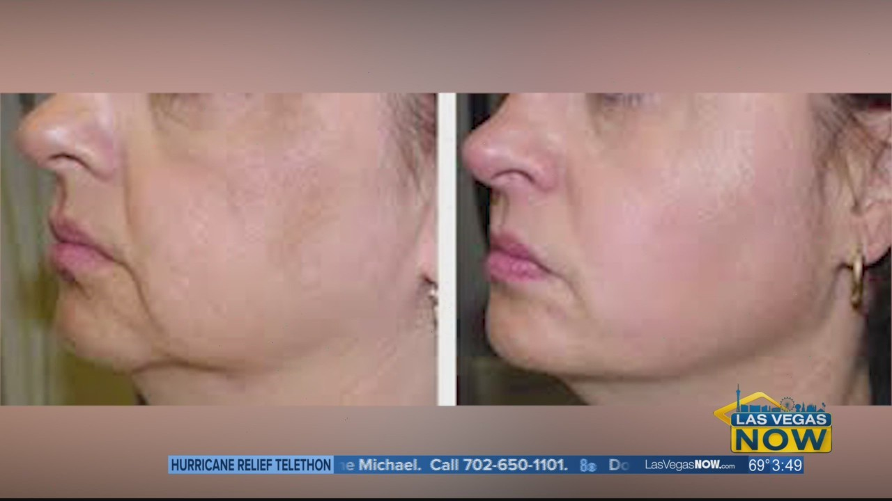 Look younger with skin tightening