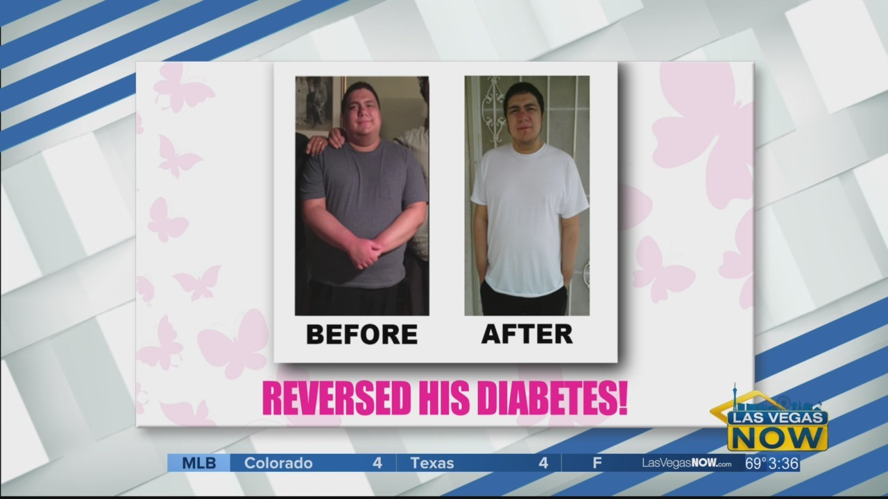 Dominick reversed his Type 2 Diabetes thanks to Dr. Nash