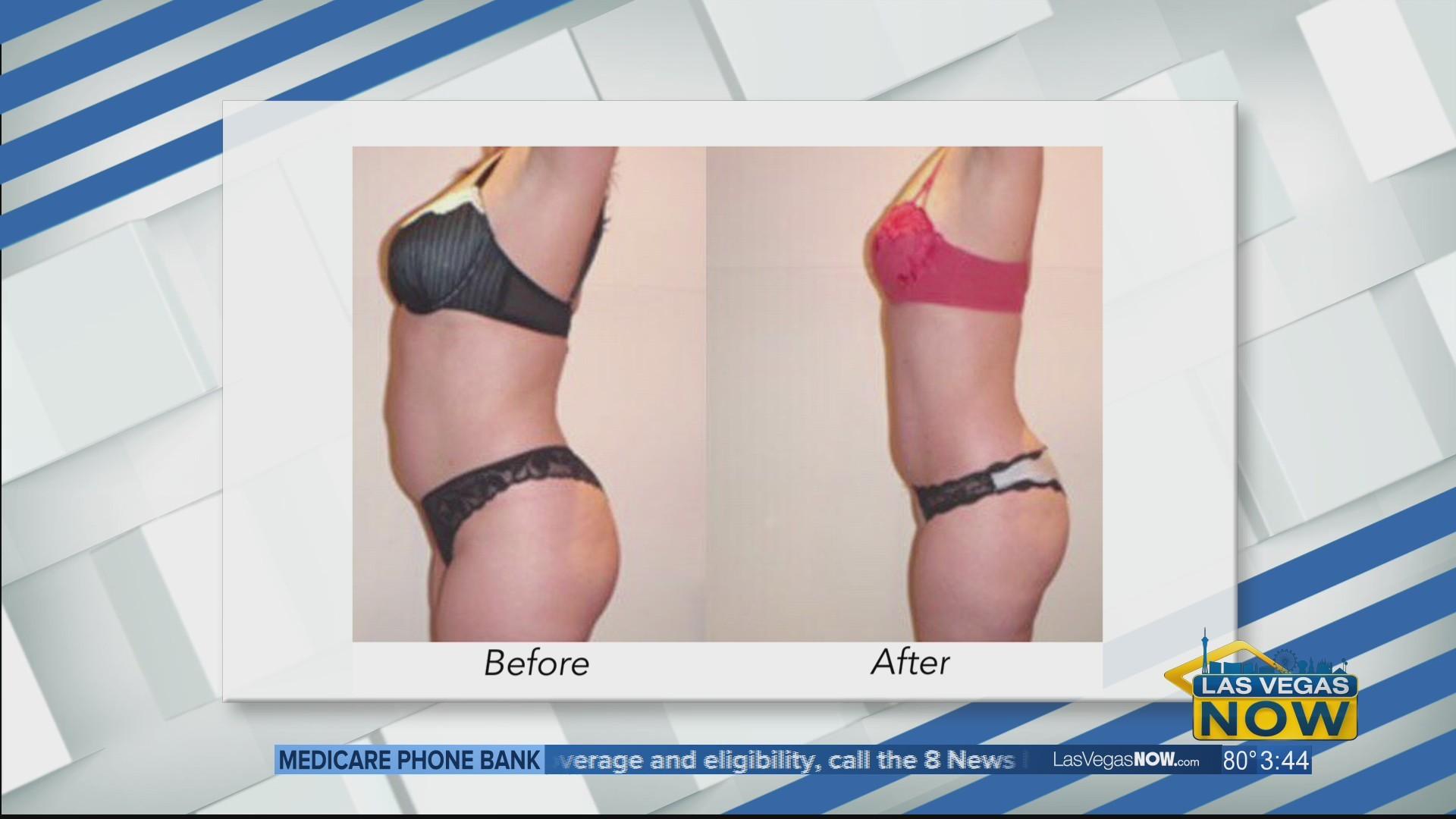 Full body bio-stimulation treatment with VJazzy Wellness